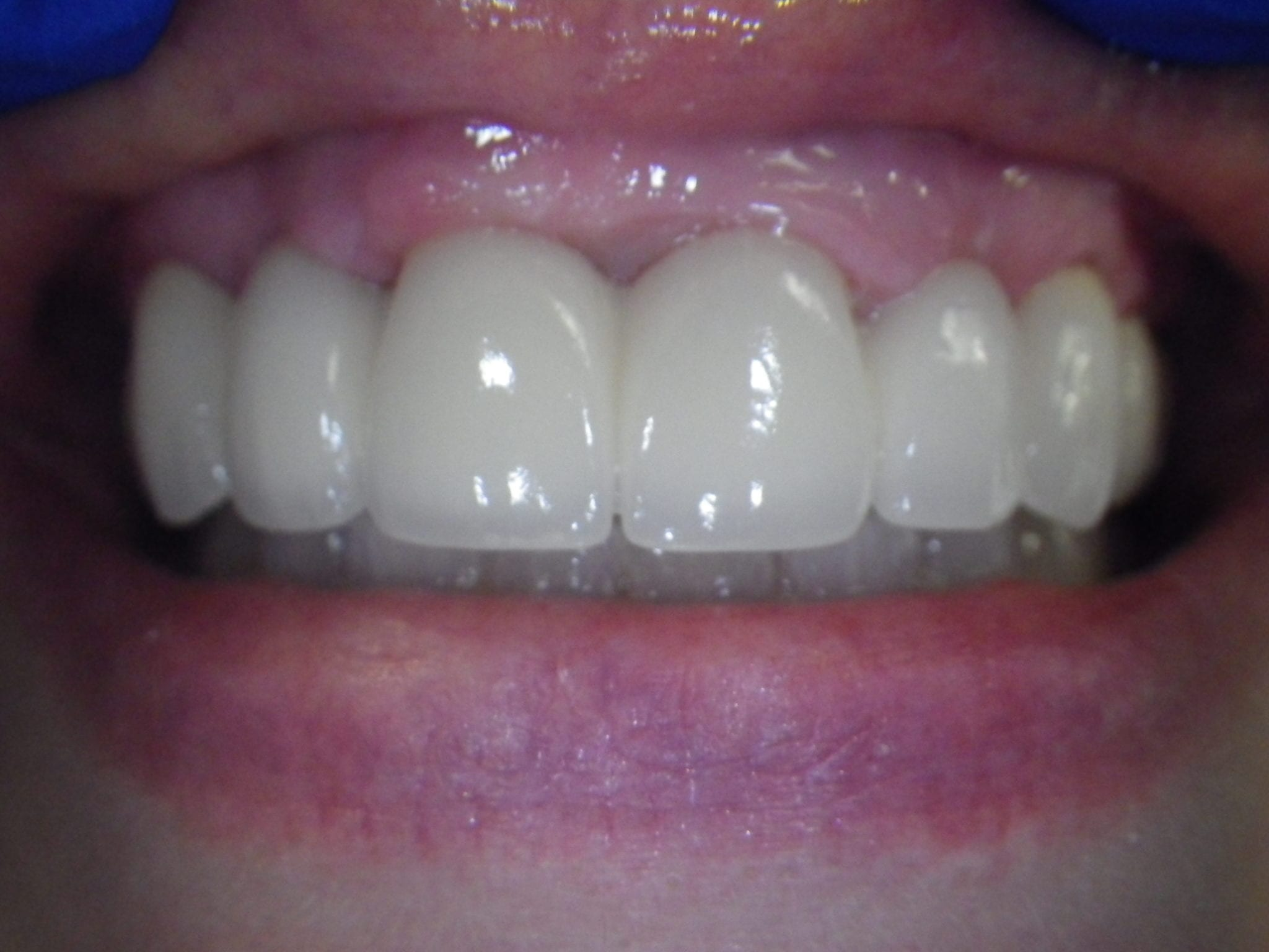 32 pearls Dental Bridge 2