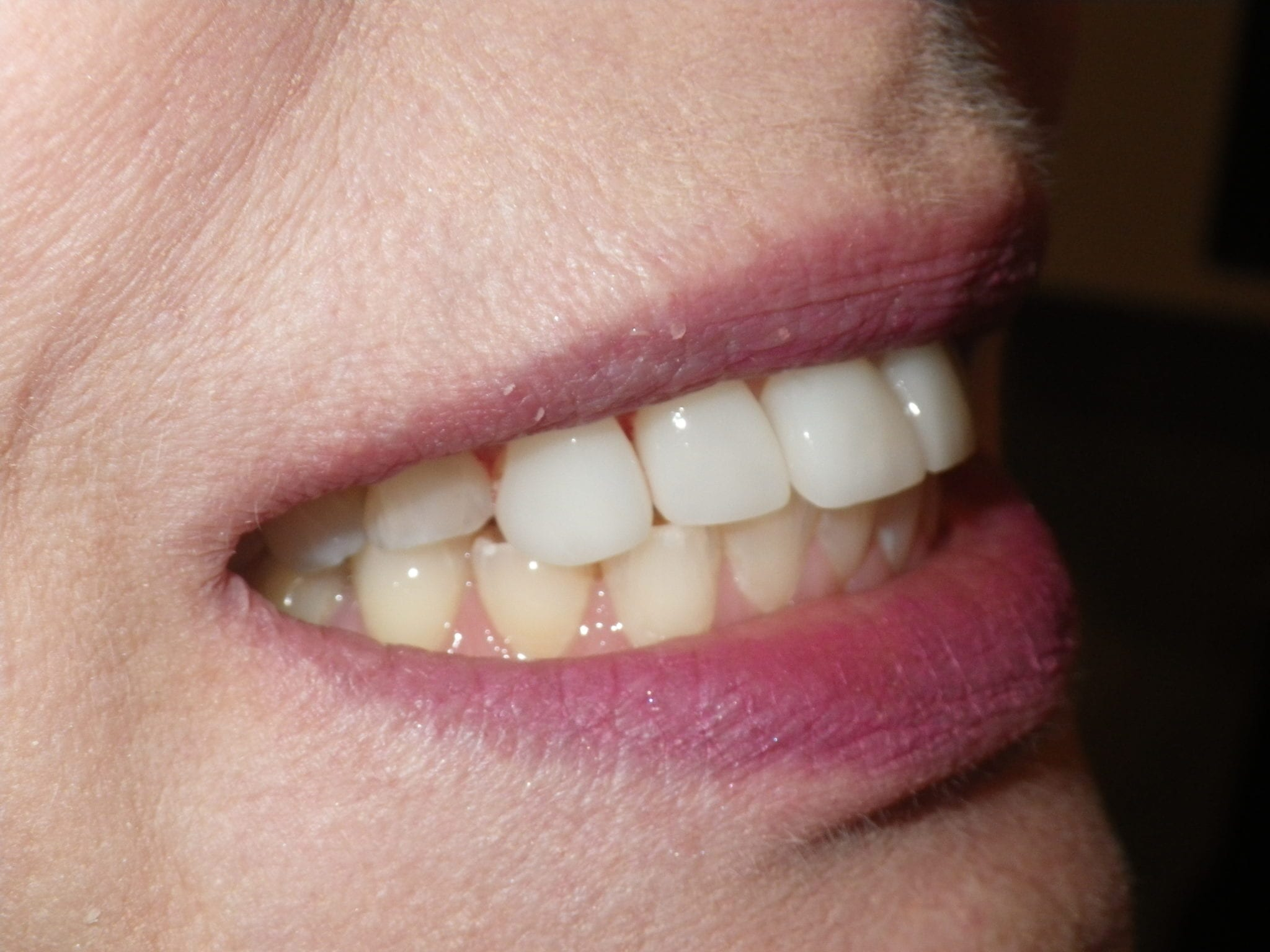 32 Pearls Cosmetic dental treatment 2