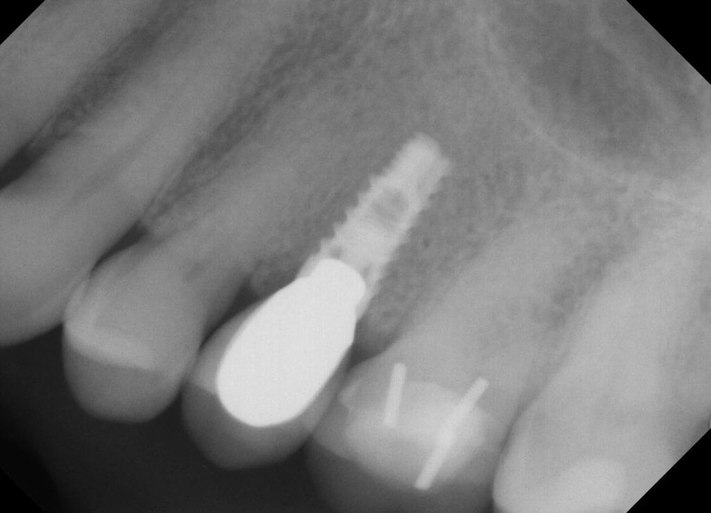 32 pearls dental implant 4