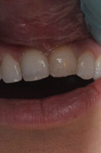 Before Veneers at 32 Pearls Seattle Dentistry