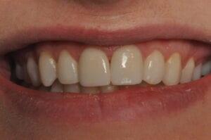 Veneer final 32 Pearls Seattle Dentistry
