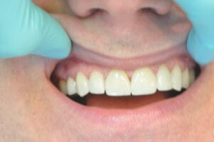 After Veneers, 32 Pearls Seattle Dentistry