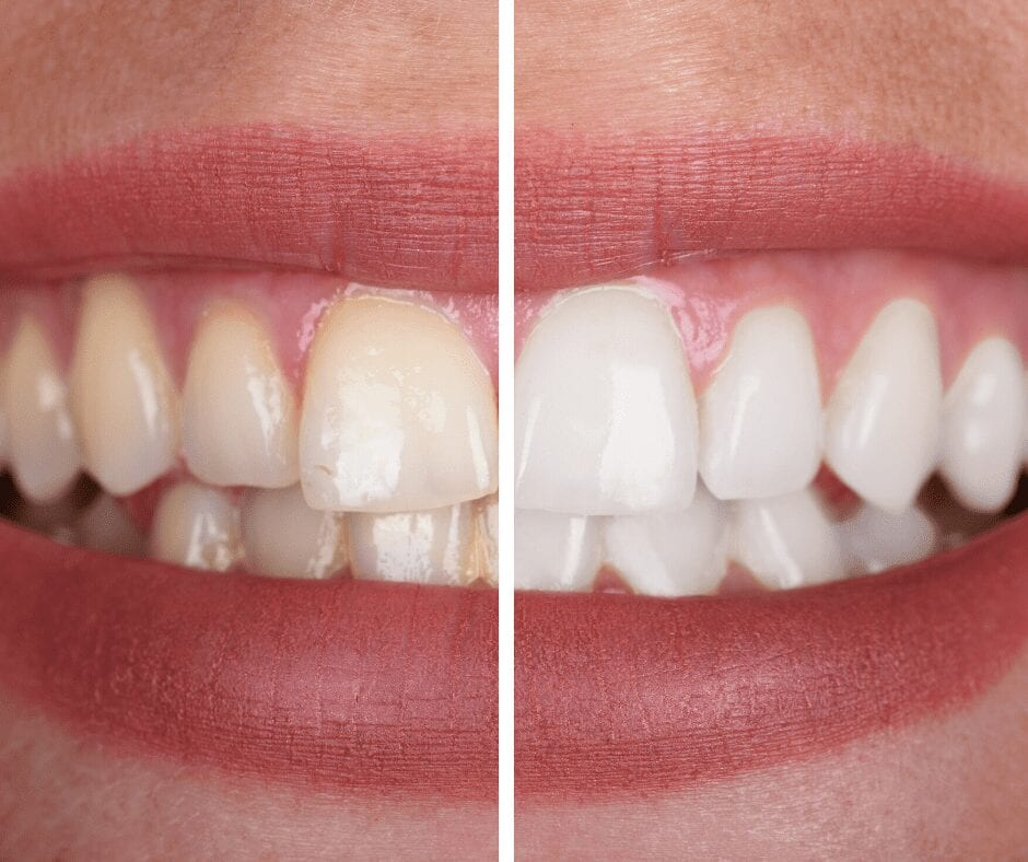 Before and after photo of teeth whitening procedure from 32 Pearls Seattle